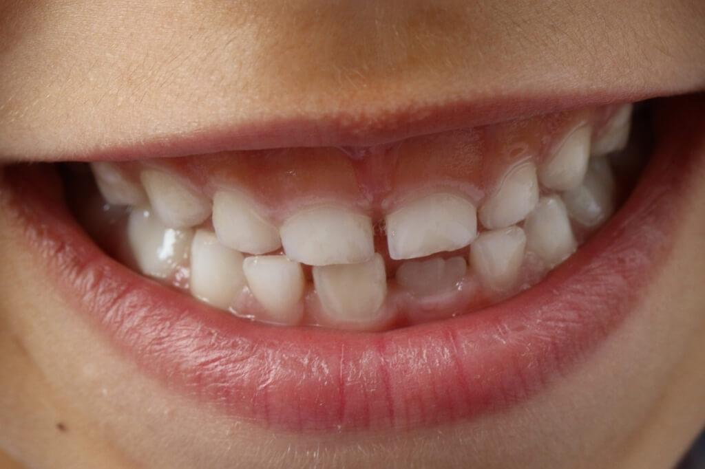 Saiba como armazenar células-tronco do dente de leite